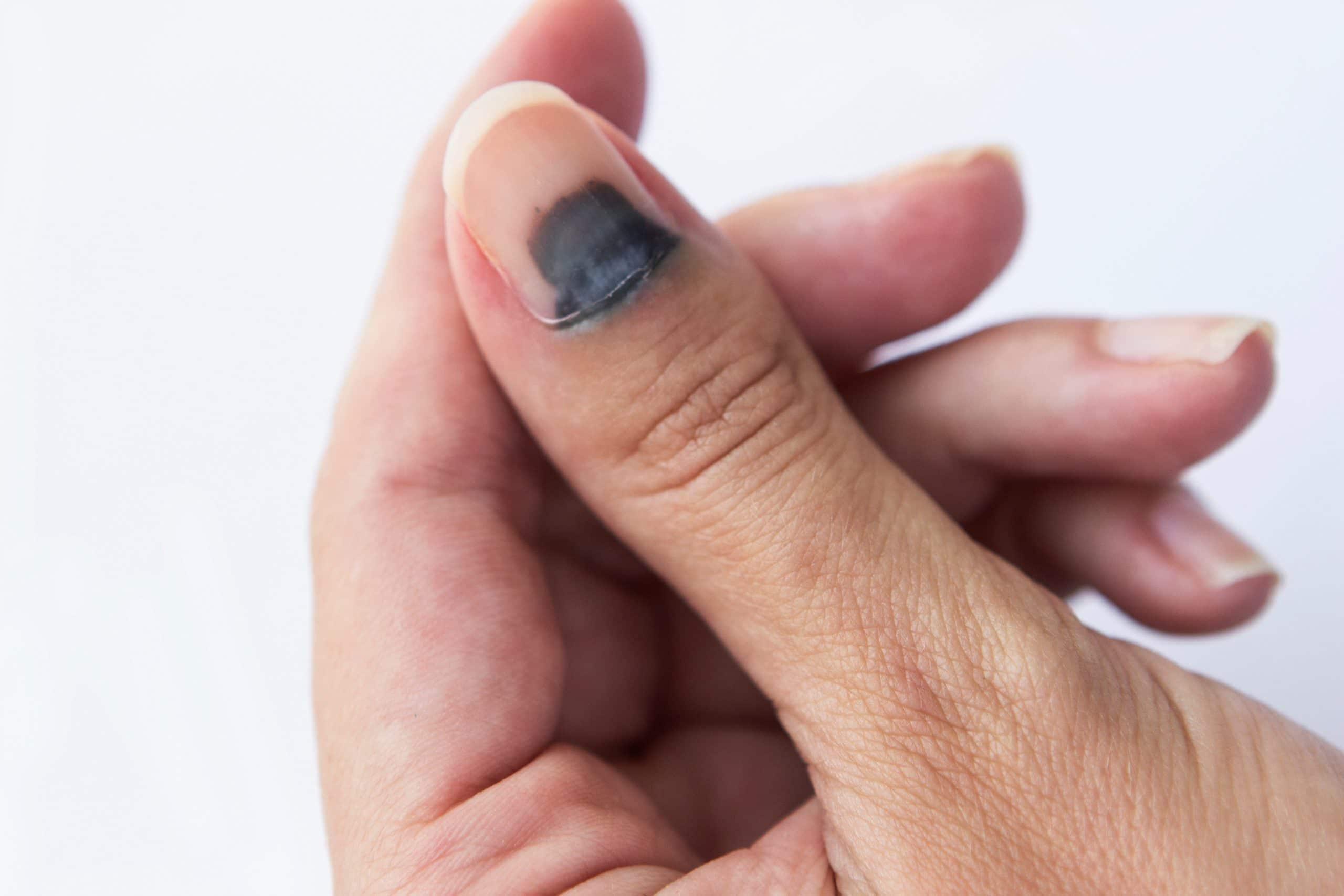 Que faire en cas d'ongle noir ?