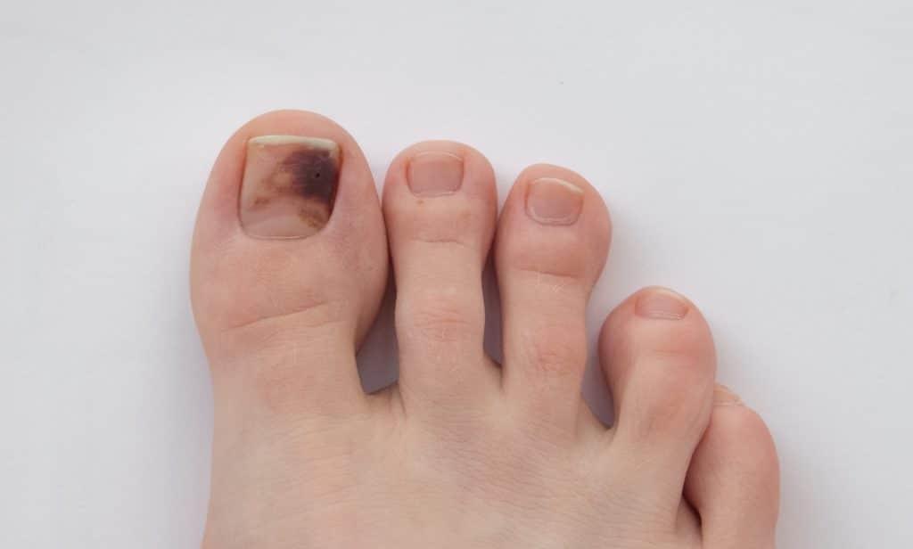 Pourquoi mon ongle devient noir ?
