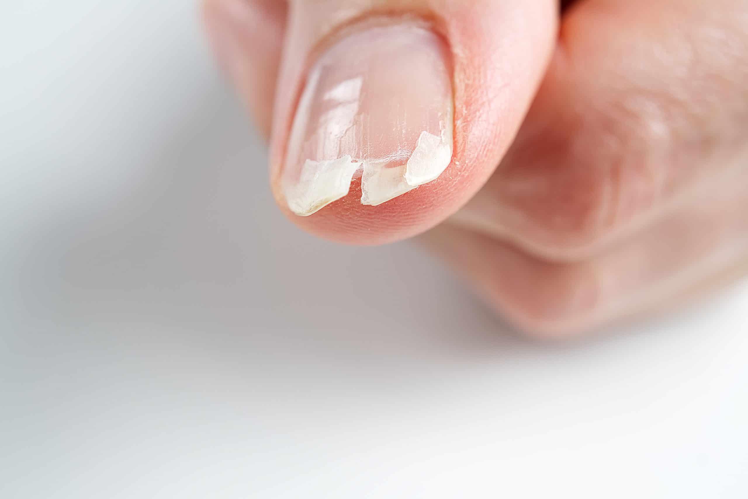 Comment réparer un ongle cassé ?
