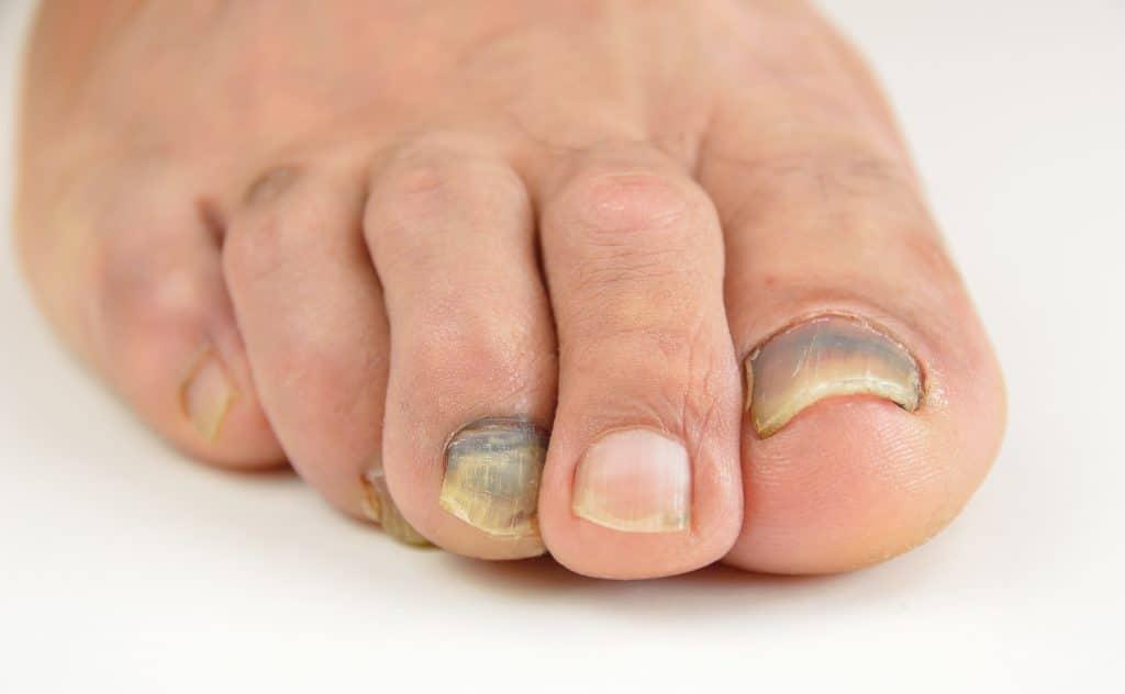 Comment soigner un ongle noir ?