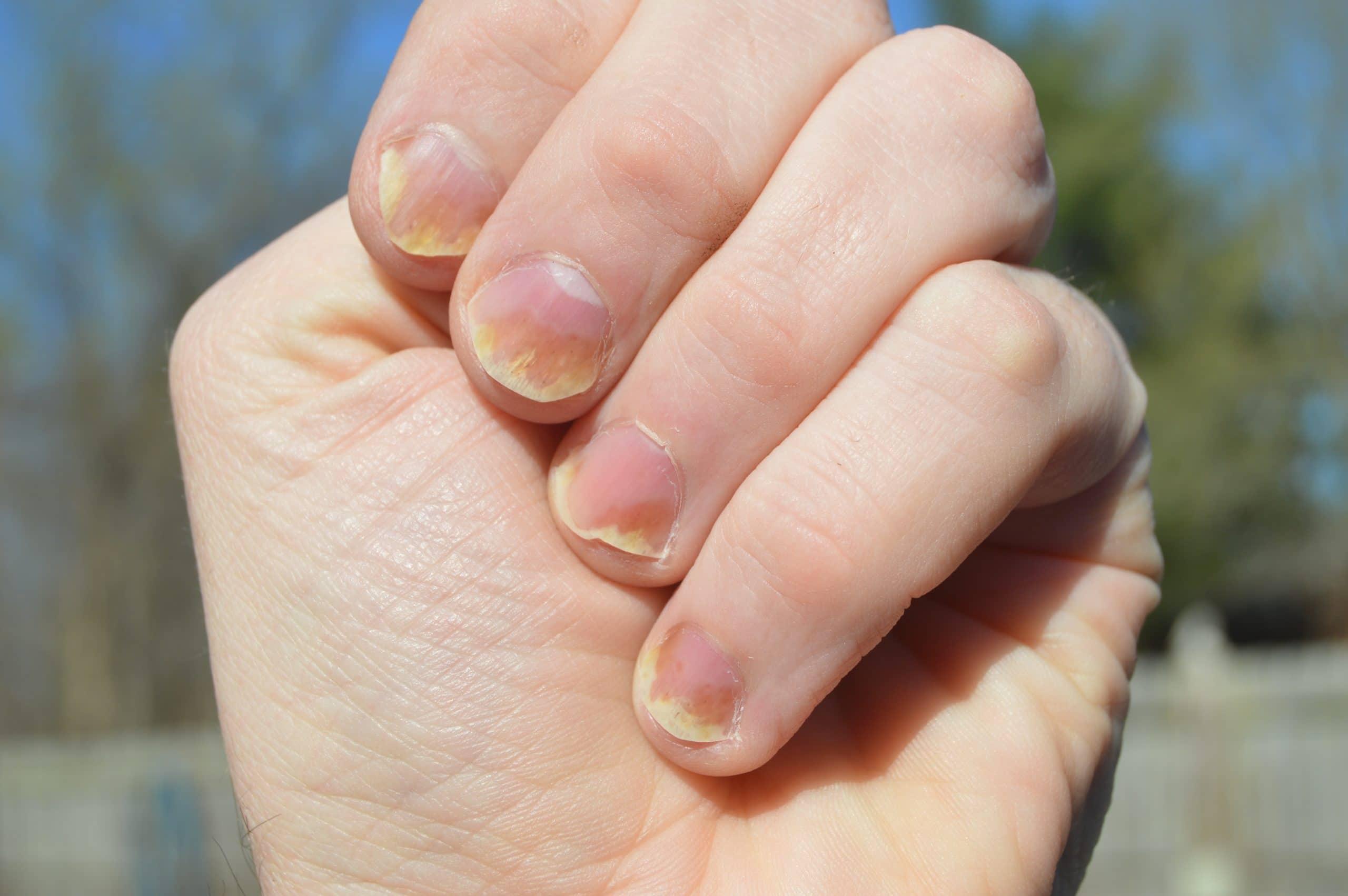 Ongles jaunes : quelles sont les causes et les traitements ?
