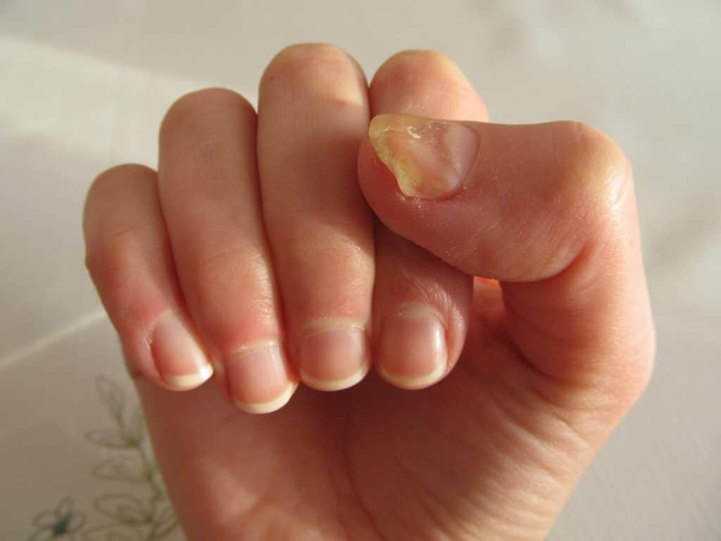 Pourquoi les ongles deviennent-ils jaunes ?
