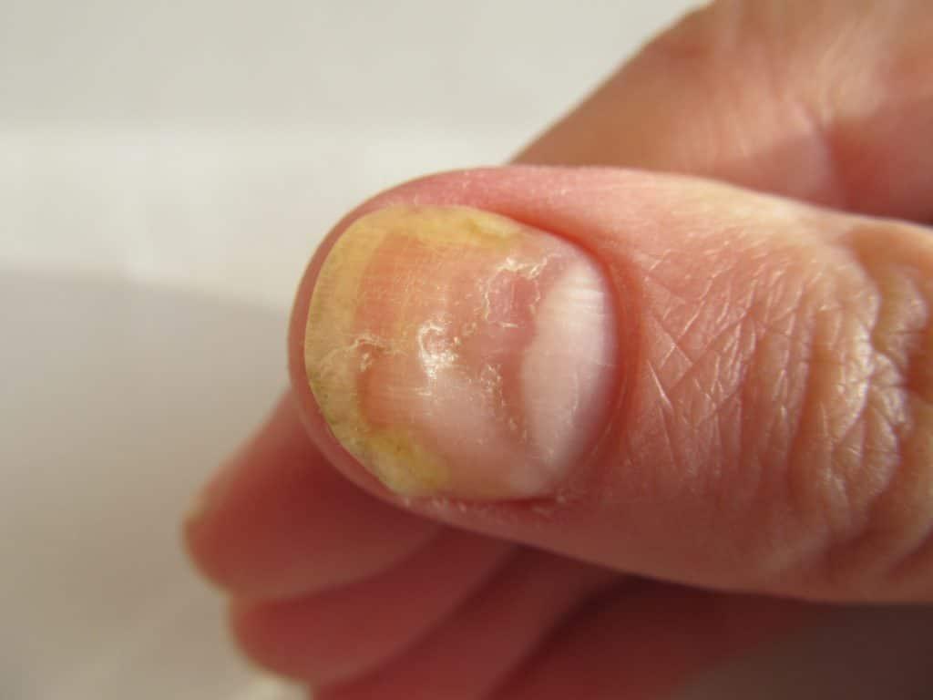 Comment traiter les ongles jaunes ?